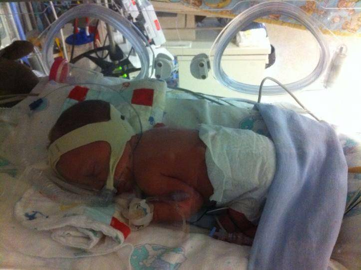 preemie baby on cpap in incubator in NICU