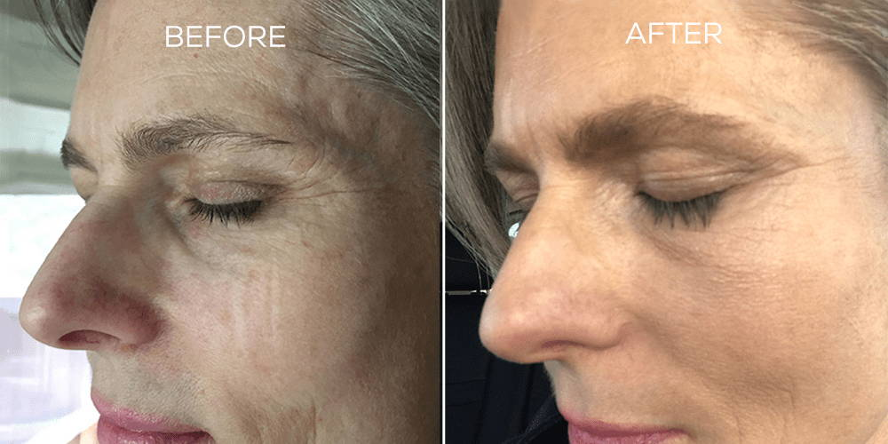 Before and After Results Using BROW Shape Altering Serum with Keracyte® Elastin Complex