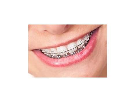 Upper East Side Orthodontics
