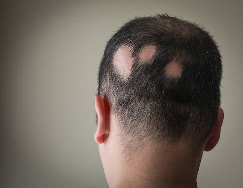 man with multiple bald spots and alopecia