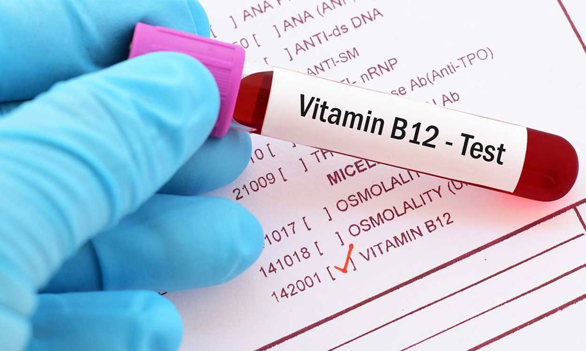 Vitamin B12 Deficiency Can Lead to Hair Loss | Hair Club