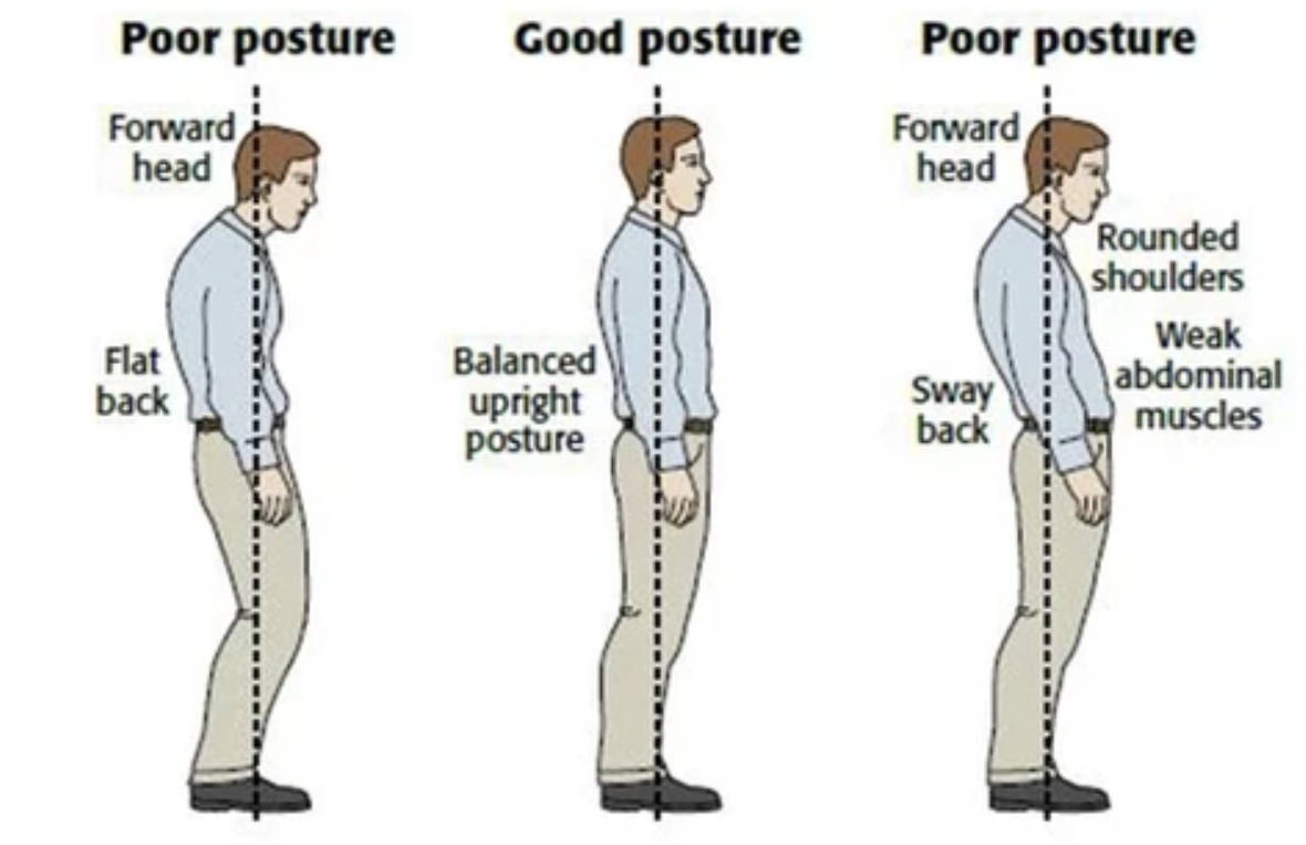 posture brace, back brace for posture, best posture corrector, posture corrector device, back posture corrector, back brace posture corrector