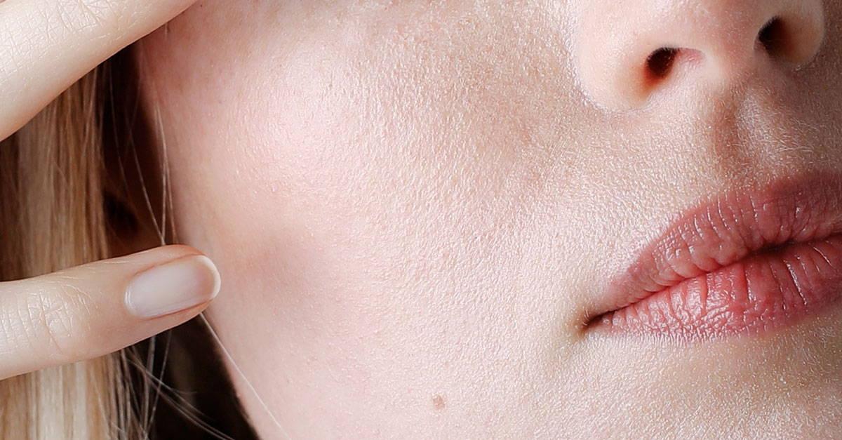 5 Tipps für empfindliche Haut.