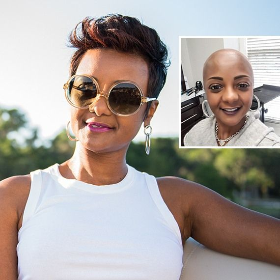African American woman with hair replacement solution, Xtrands+