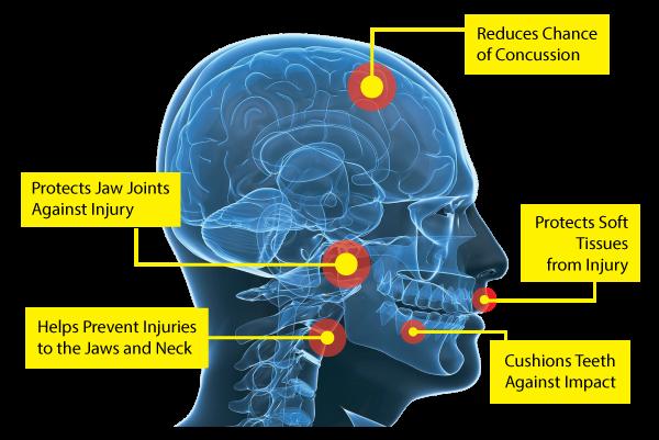 Custom mouthguards benefits diagram.