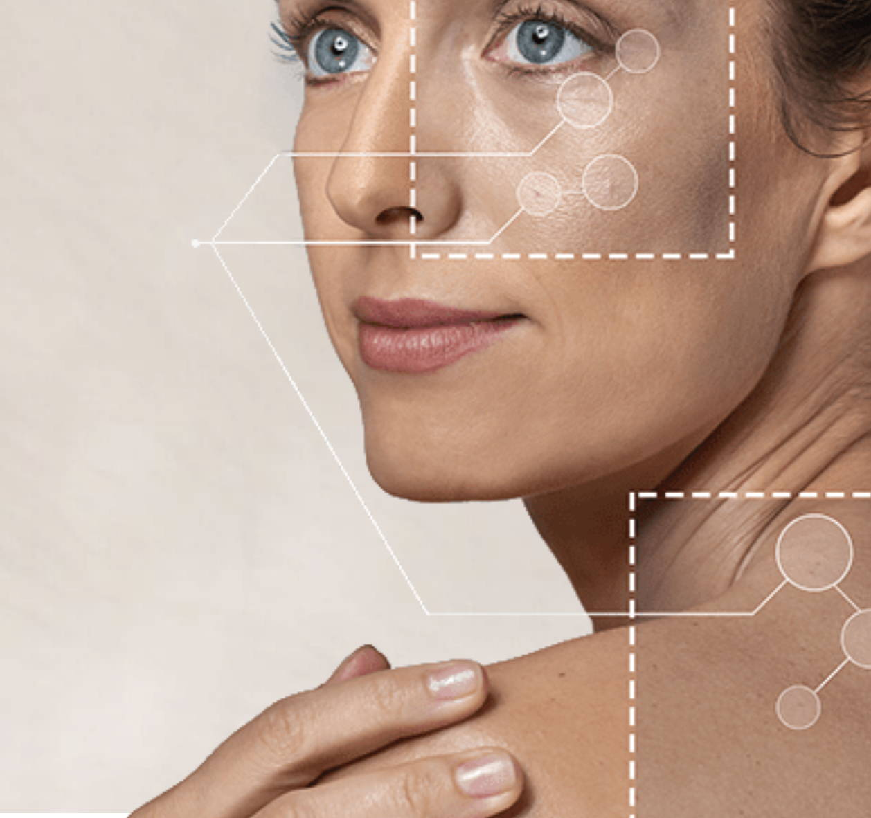 vivace micro needling beautymedix brighton medical spa Melbourne skin ageing solutions medispa vivace rf micro needling